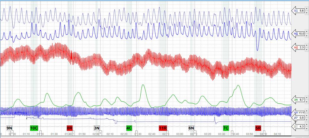 Полиграммы полиграфа - графики реакций
